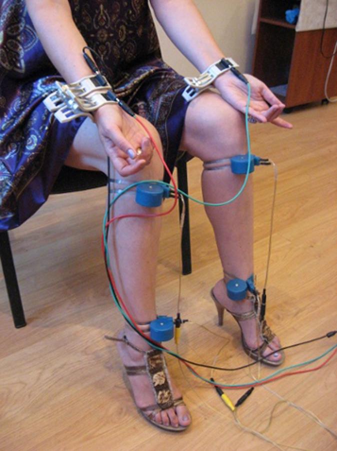 Что делать если под коленками сильный варикоз